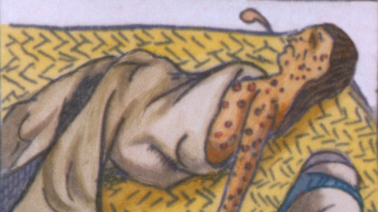 natives-smallpox-everett-clra001_bz063